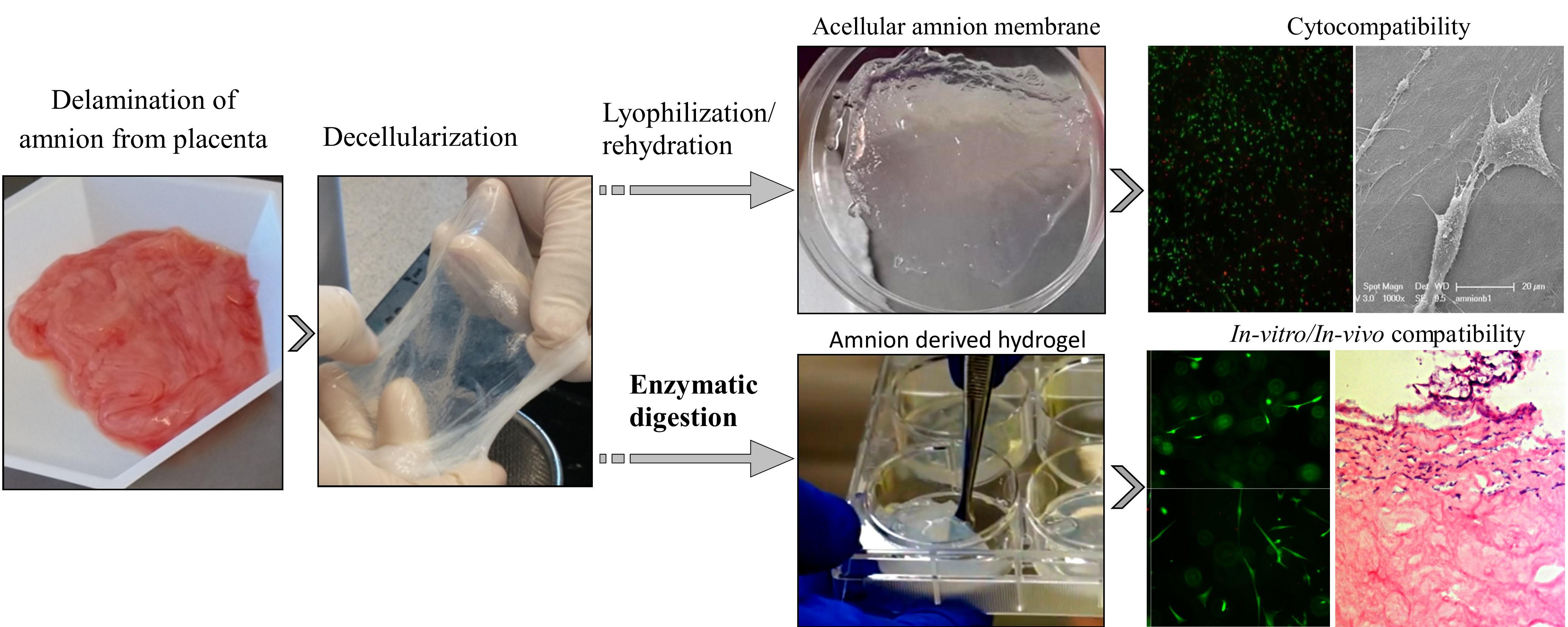 Human amnion extracellular matrix derived bioactive hydrogel for cell delivery and tissue engineering