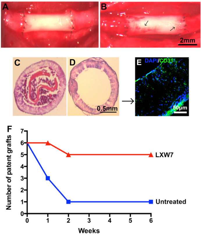 LXW7 modification improved graft patency. New capillary formation was exhibited on untreated grafts (A) and LXW7-modified grafts (B) at week 6 after implantation. Arrows in (B) indicate new capillary formation was present on the LXW7-modified grafts. Representative H&E staining of the cross sections of the vascular grafts at week 6 after implantation showed that the untreated graft had a significant amount of thrombus formation (C) and LXW7-modified graft exhibited a widely open lumen and no thrombus formation (D). (E) Immunostaining of cross sections of LXW7-modified grafts with mature EC marker CD31. (F) The patency of the grafts was examined at various time points. Each group at each time point included 6 animals.